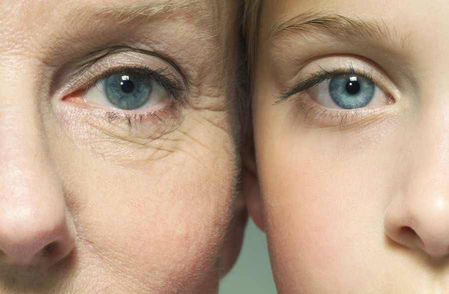 You can minimize your wrinkles with these methods you can apply at home.